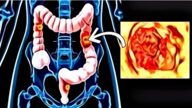 Колко време живеят хората с диагноза рак на дебелото черво?