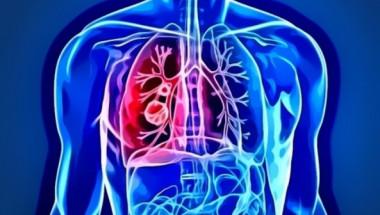 Колко живеят хората с диагноза рак на белия дроб?