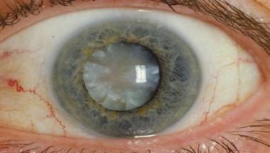Най-добрата превенция на катаракта, забравете за операциите