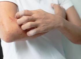 Силният сърбеж може да е симптом на страшна болест
