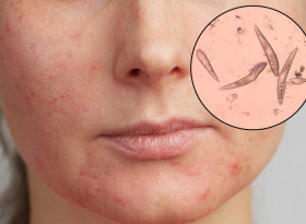 Демодекозата е маркер за нарушения в организма