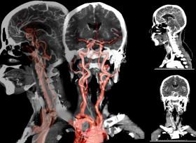 Доц. д-р Станимир Сираков: Мозъчните аневризми се срещат при 5-6% от хората