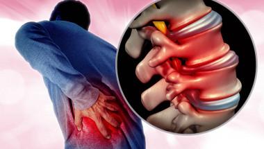8 натурални средства срещу болка  при ишиас