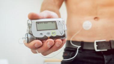 Полага ли се инсулинова помпа  по НЗОК на възрастни пациенти?