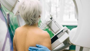 Д-р Валентин Иванов: 60-годишните най-често боледуват от рак на гърдата
