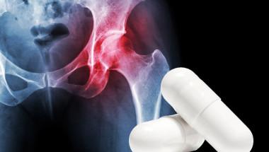 Витамини B6 и B12 повишават риска от счупване на тазобедрена става