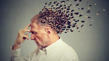 8 признака на болест на Алцхаймер