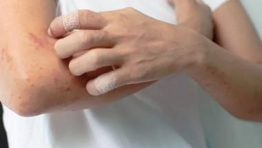 Дерматолог обясни защо безпричинният сърбеж на кожата е опасен