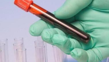 Анализ на кръвта показва колко дълго ще живеем