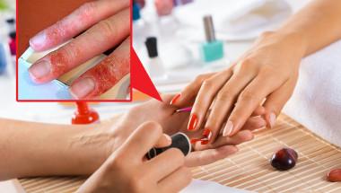 Най-новата напаст е непоносимост към гел лаковете за нокти