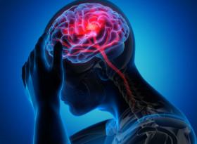 Внимавайте, тези симптоми алармират за предстоящ инсулт