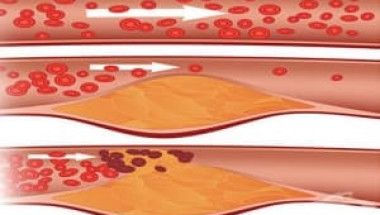 Установиха кой плод смъква високия холестерол