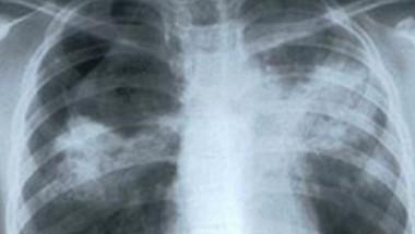 Елементарен тест разкрива имате ли рак на белия дроб