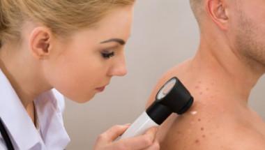 Кои заболявания могат да се познаят по кожата