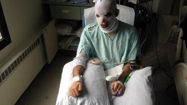 Мъж гори отвътре навън, маска от свинска кожа го спасява от страшната болест СНИМКИ