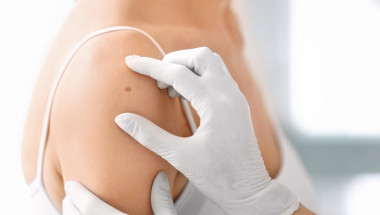 Проф. д-р Георги Чернев: Създадохме нов метод за лечение на меланом