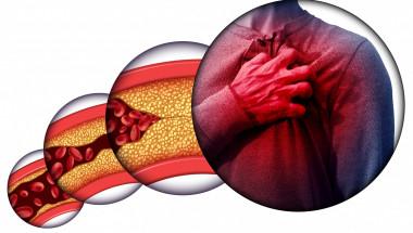 Най-ефективните храни за понижаване на холестерола