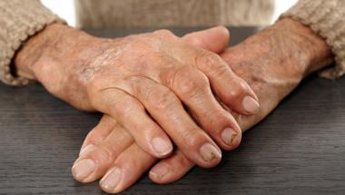 Диета и спорт помагат при ревматоиден артрит