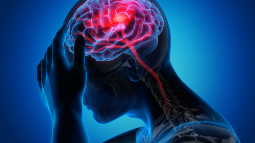 Мозъчният инсулт се случва при пристъп на мигрена