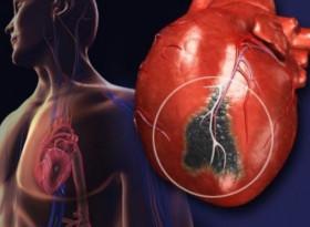 Какво е нужно, за да се предпазим от сърдечен пристъп