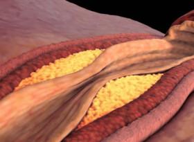 4 храни, които намаляват холестерола
