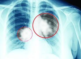 Проф. д-р Галина Кирова, д.м.: Стартираме скрининг за ранно откриване рака на белия дроб