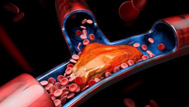 Д-р Пламена Хараланова: Чрез нови изследвания може да оценим риска от развитие на атеросклероза