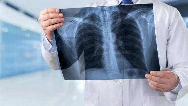 5 ранни признака на рак на белия дроб, които често остават незабелязани