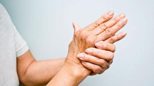 Лесни начини да се спасите от артрит