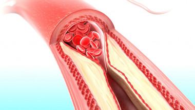 ТАБЛИЦИ показват нормалните стойности на холестерола при мъже и жени