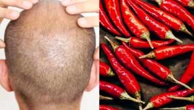 Лекари с плашещо предупреждение за втриването на лют червен пипер в скалпа срещу косопад