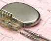 Какво поема НЗОК при имплантирането на пейсмейкър?