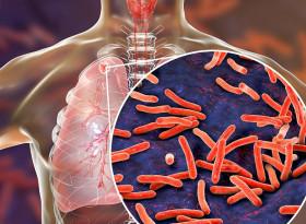 Д-р София Ангелова: Туберкулозата засяга хора със слаб имунитет