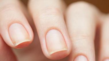 За какви заболявания говорят лентите и трапчинките по ноктите
