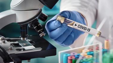 Учени проследиха как имунната система на човек побеждава коронавируса