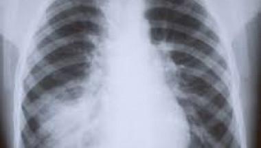 7 признака, че обикновена настинка е преминала в пневмония