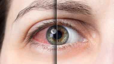 Кръвоизливът в окото налага да проверите състоянието на кръвоносните съдове