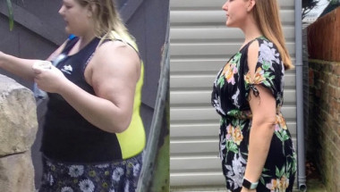 Жена свали 56 кг с диета, която сама измисли, но гледката под дрехите й е покъртителна СНИМКИ
