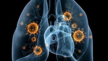 Как се лекува вирусна пневмония със забравени средства