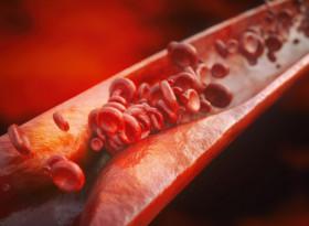 7 признака, че може да имате тромб