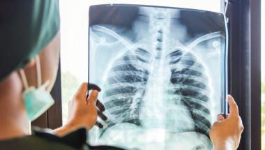 Д-р Севда Найденска: Пневмониите са на трето място сред болестите, причиняващи смърт