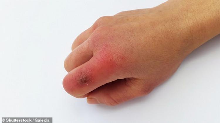 Как кожата алармира за COVID-19 СНИМКИ