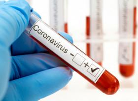 Защо трябва да си платим теста за коронавирус  при прием в болница?