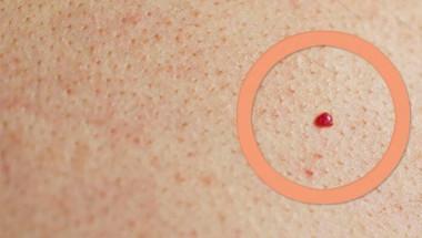 Опасни ли са червените бенки и в кои случаи е необходимо да посетите лекар