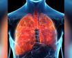 Симптоми на пневмонията