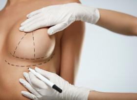 300 000 жертви на силиконови импланти