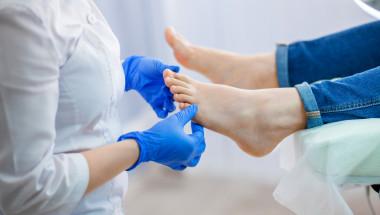 Може ли гъбичките по ноктите да се объркат с псориазис?