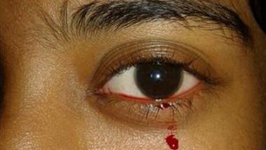 Мистерия: Здраво 11-годишно момиче изведнъж изплака кървави сълзи СНИМКА
