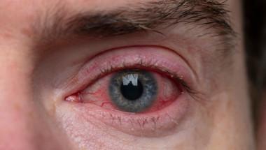 Самолечението при вирусен конюнктивит е опасно