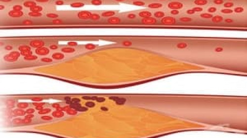 Никой не подозира, но тези популярни плодове намаляват холестерола